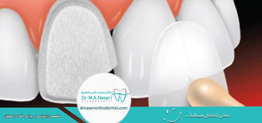 مزایا و معایب لمینت دندان