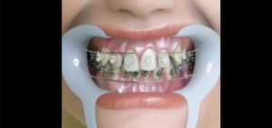 How to treat orthodontics