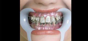 How to treat orthodontics