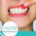 عفونت دندان در حین ارتودنسی