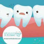 دلایل دندان کج