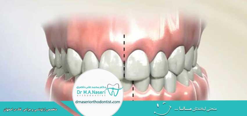 اصلاح میدلاین دندان
