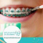 سفیدکردن دندان ها پس از ارتودنسی