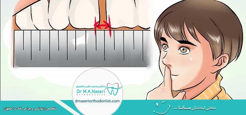 از بین بردن فاصله بین دندان ها بدون ارتودنسی
