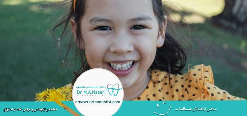 درمان دندان کج کودکان