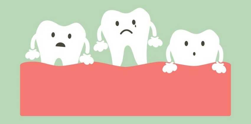 آیا ارتودنسی باعث لق شدن دندان میشود ؟