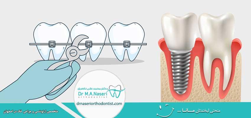آیا با وجود روکش یا ایمپلنت دندان امکان ارتودنسی وجود دارد؟