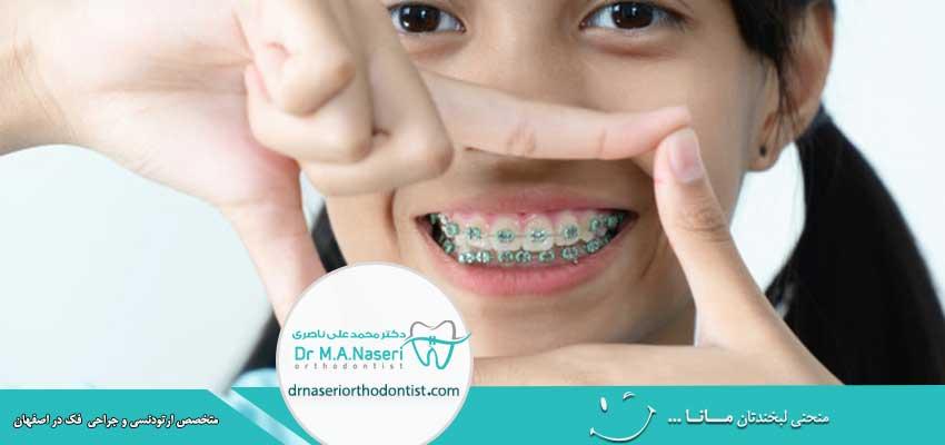 چه دندان هایی باید ارتودنسی شوند؟